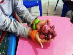 Imagem 2. Criança cria caranguejos e pulseiras com massas co-loridas de modelar. (Ciudad de Chapecó, 2018) Fonte: Acervo do autor.