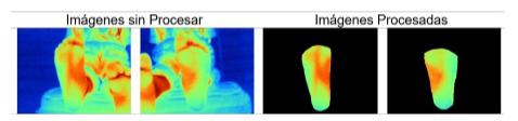 Ejemplo imágenes termográficas del pie.