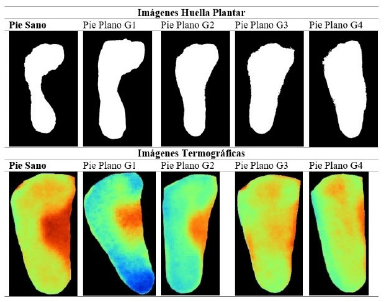 Ejemplo imágenes de huella y teromográficas por tipo de pie