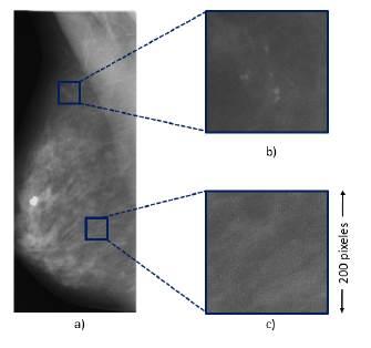 a) Imagen mamográfica original. b) Parche con microcalcificaciones. c) Parche de tejido sano.