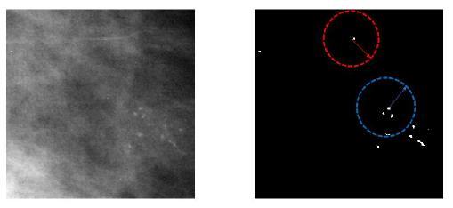 La imagen de la izquierda muestra el tejido mamario con una agrupación de microcalcificaciones. La imagen de la derecha muestra la segmentación de los candidatos a microcalcificaciones. El círculo de color azul corresponde a la región radial de un candidato a microcalcificación con 3 vecinos. El circulo color rojo corresponde a la región de un elemento que se descarta como candidato a microcalcificación por no tener vecinos dentro de la región radial